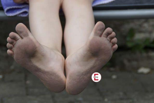 bastonade bdsm lexikon fetischlexikon bestrsfung eronite