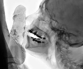 Der Röntgen-Blowjob