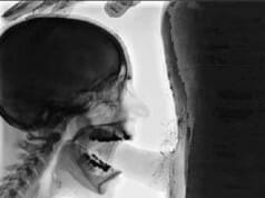 Faszinierend: Röntgen-Blowjob zeigt Details
