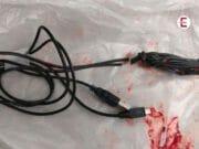 15-Jähriger steckt sich ganzes USB-Kabel in den Penis